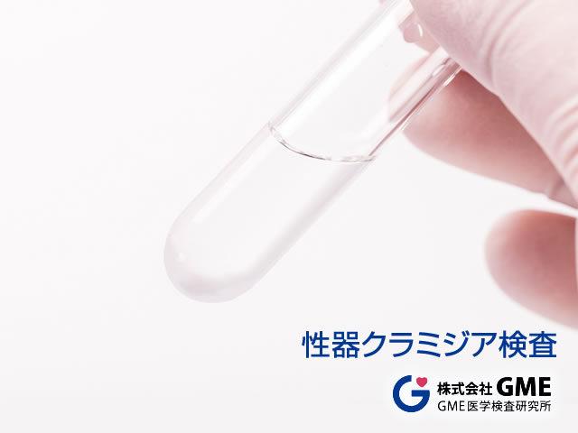 性器クラミジア検査